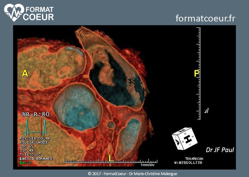 Tumeurs du cœur gauche